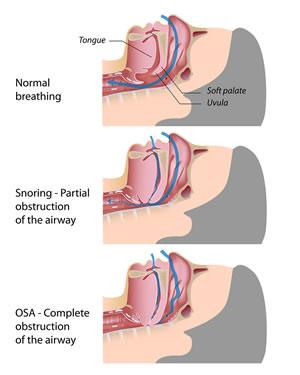 snoring and apnea